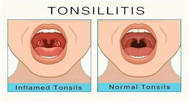 ENT Problems Tonsillitis