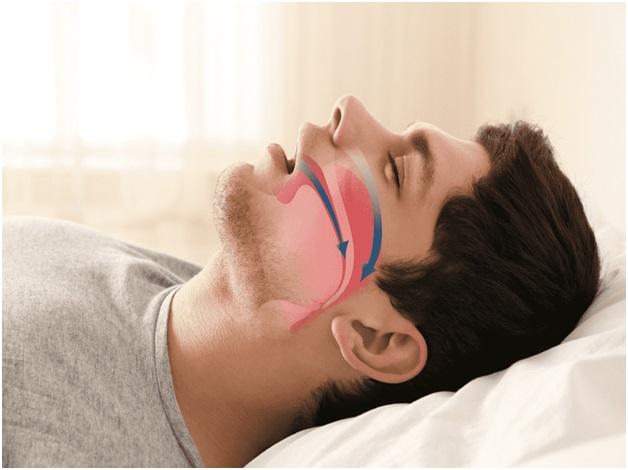 ENT Problems apnea (sleep deprivation)