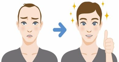 Hair Transplant- Myths & Facts